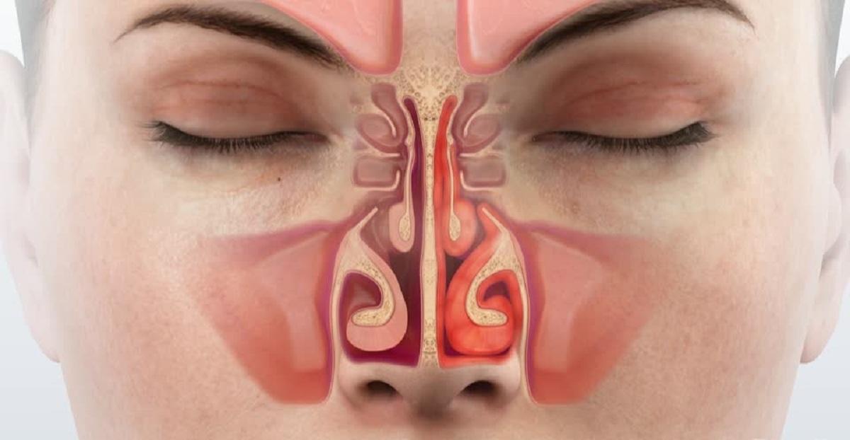التهاب-الانف-التحسسي
